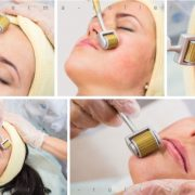derma_roller_skin_therapy